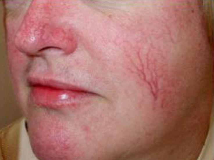 spider diminish veins facial