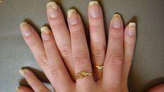 Fingernail fungus treatment home remedies