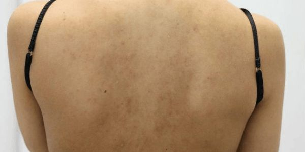 How to get rid of back pimples