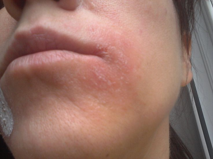 Eczema | facialist's guide to managing facial eczema.