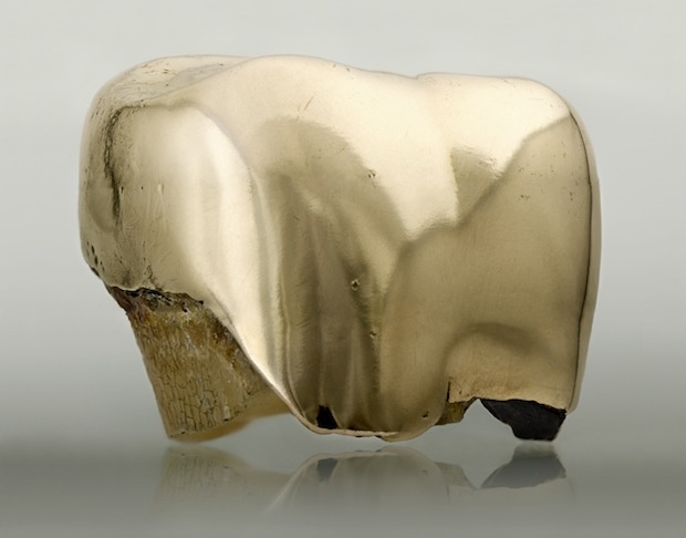 Ewa Axelrad, Is it Safe version II, duratrans print 100 x 127 cm, extracted gold tooth. Courtesy of the artist.