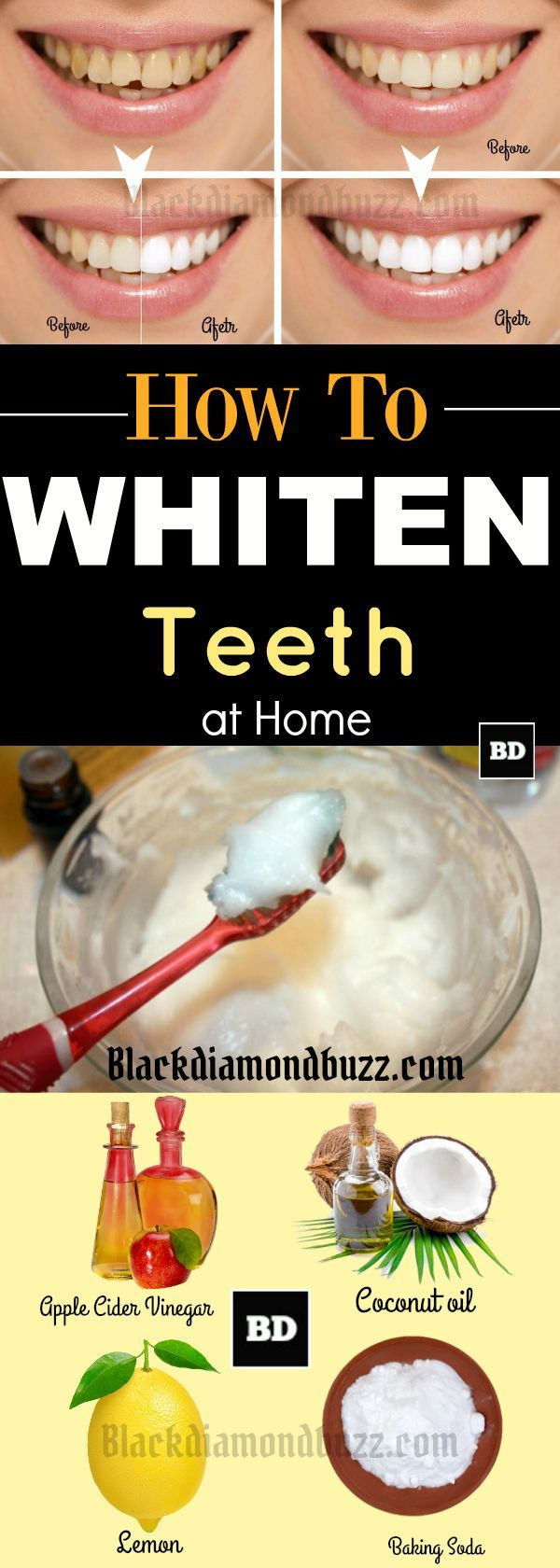 Do you want to make your teeth white fast and get rid of yellow teeth? Then here are how to whiten your teeth in 5 minutes naturally. These home remedies for whiter teeth work instantly . Try it!