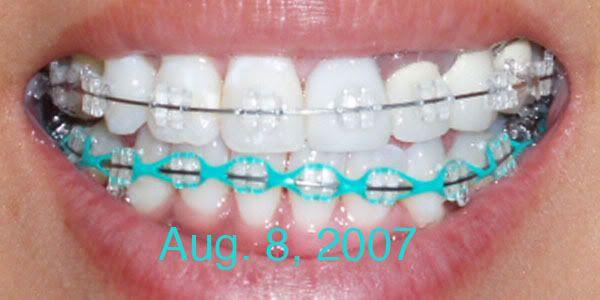 231 best braces color ideas images on Pinterest   Braces ...