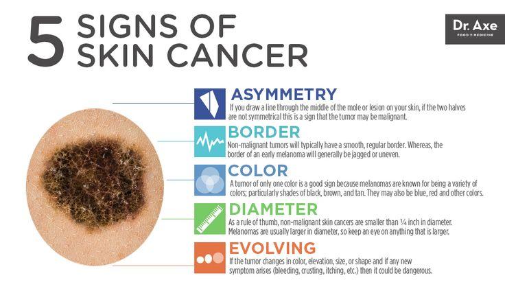 Skin Cancer Lessons Tes Teach