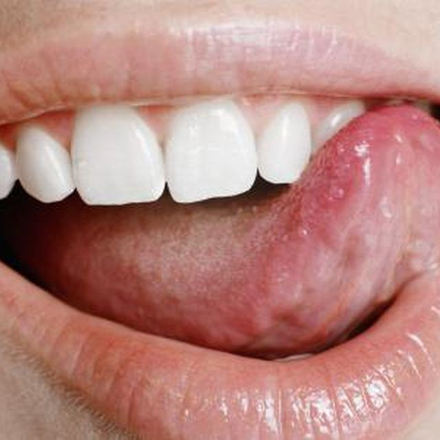 tongue with canker sores