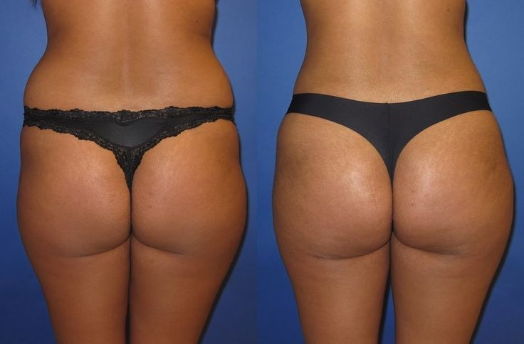 hip dip filler surgery before and after – Google Search