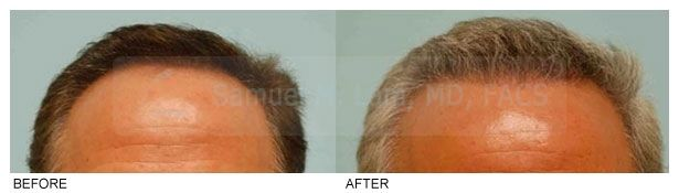 """Hispanic hair restoration techniques vary, depending on the mixed Hispanic heritage from which they come (so-called """"Mestizo""""), and thereby the hairline is tailored to that constraint. The term """"Hispanic"""" is very broad and encompasses many types of individuals of Spanish descent including Mexican, Caribbean, European, and Central and South American. #Hispanichairrestoration #hairtx #drsamlam #hairdisorders #ethnichairtranspalnt #Mestizohairtransplant"""