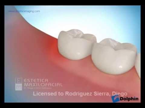 Extracción de terceros molares (Cordales)