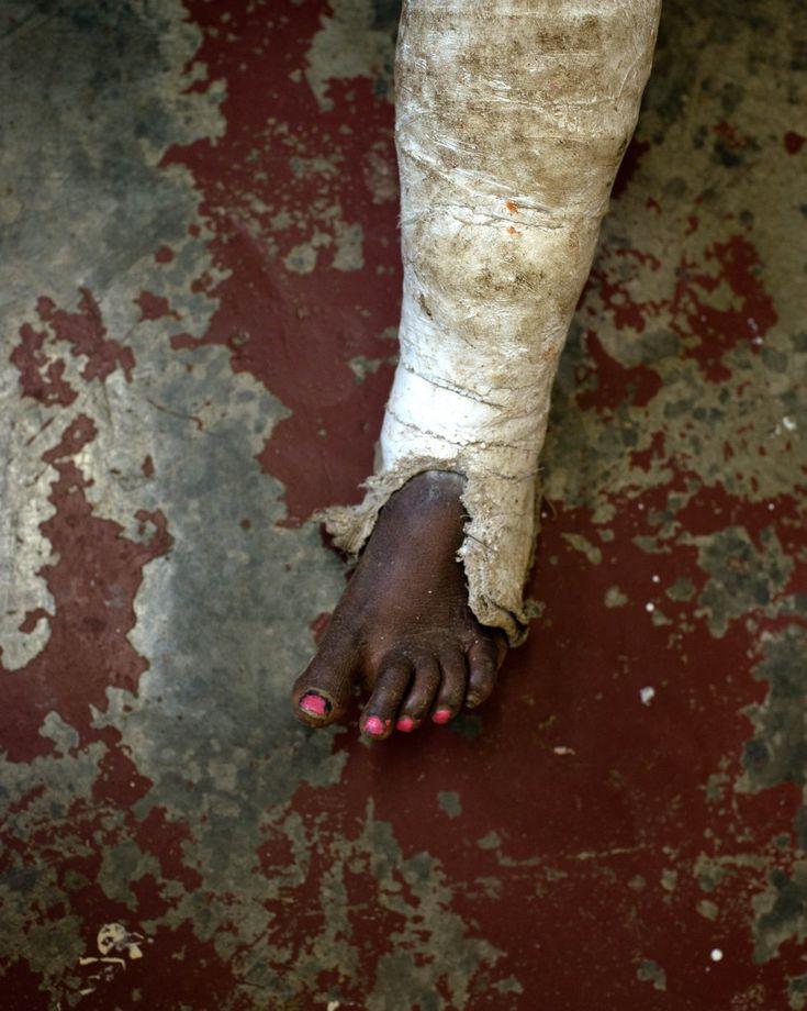 Esta mujer víctima de violencia doméstica fue golpeada por su marido mientras se duchaba. Tras ser tratada de las heridas en Tari, Papua Nueva Guinea. Como no hay refugios en esta ciudad, regresó a casa junto al agresor. JODI BIEBER (MSF)