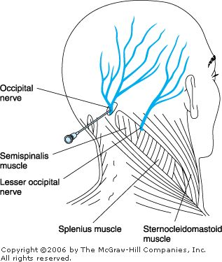 Radio Frequency Ablation of Greater and Lesser Occipital nerves