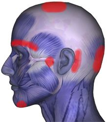 Pain areas caused by the SCM muscle.  Sternocleidomastoid Muscles: Affects Head, Eyes, Sinus, Ears, Throat, Pain, Dizziness, Whiplash
