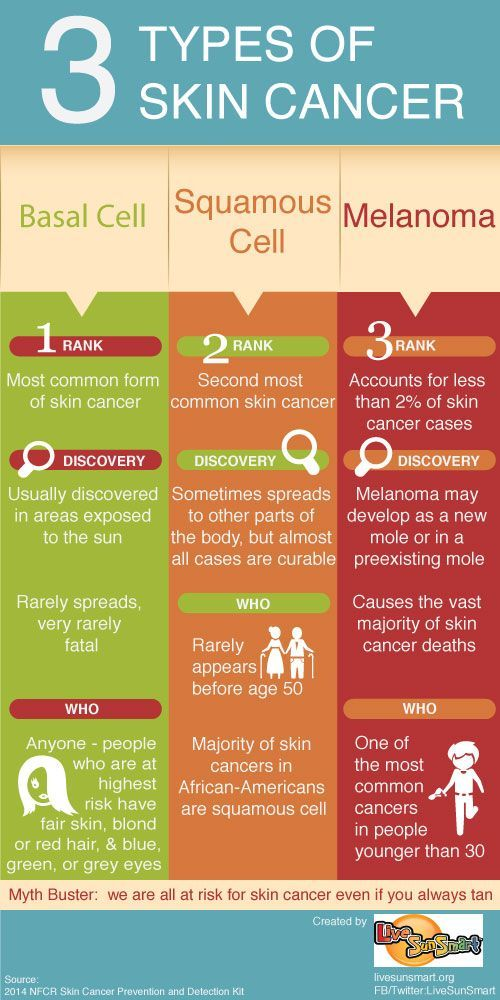 Did you know that there are 3 types of skin cancer? Check out the difference between them in this infographic.