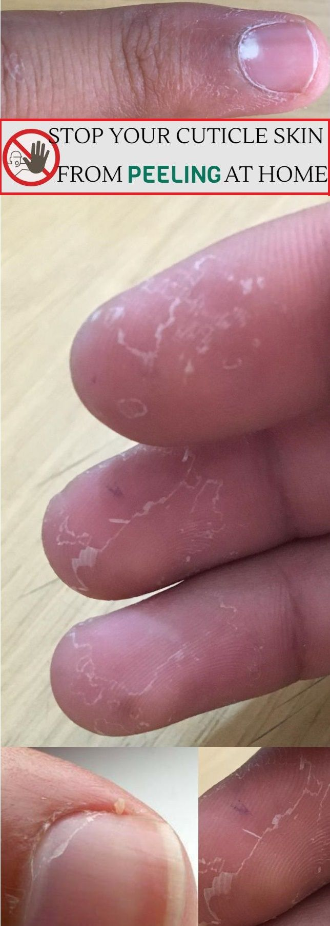 How to Stop Your Cuticle Skin from Peeling