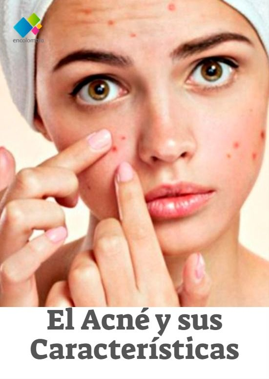 This Mask Will Banish Your Acne - My Favorite Things Best Acne Face Masks, Face Mask For Spots, Oily Skin Treatment, Cream For Oily Skin, Charcoal Face Mask, Acne Rosacea, How To Grow Eyebrows, Tips Belleza, Foundation