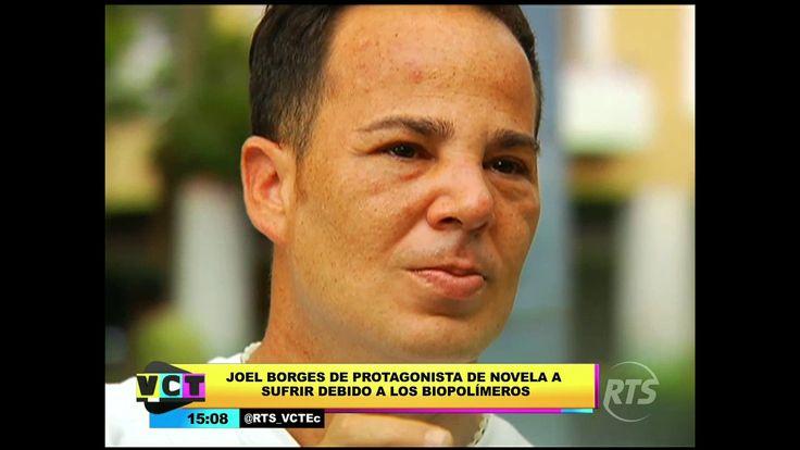 Actor venezolano deformó su rostro por biopolímeros