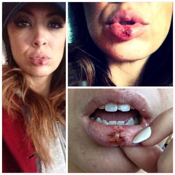 TNA Knockout Rebel revealed on Twitter that she busted her lip up and chipped a tooth recently while wrestling a match. There's no cryin n wrestling! (Actually I laughed) ha! ............ Umm but it feels real 2 me! #chippedtooth #busted…