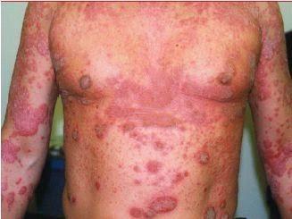 Image Result For Penyakit Autoimun