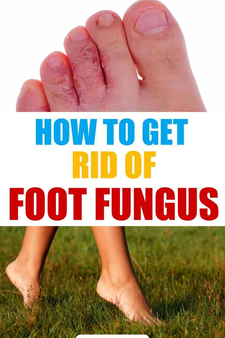 How To Get Rid Of Foot Fungus Home Remedies Treatments Foot Fungus Remedies Foot Fungus Foot Remedies