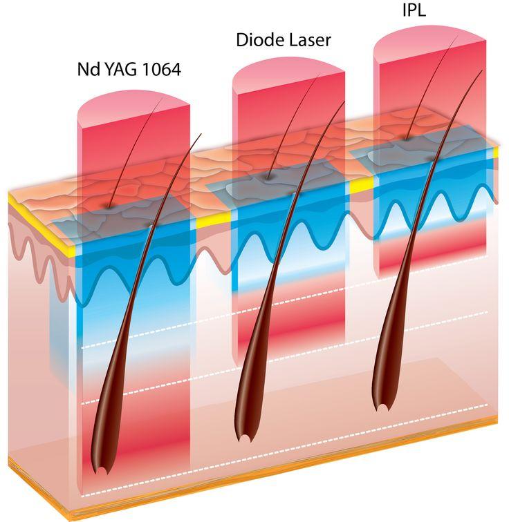 4 gelijke haren diepte laser koeling