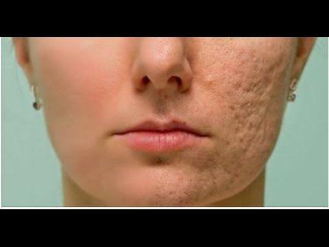 Frote esto en cualquier cicatriz o arruga y los resultados te encantarán