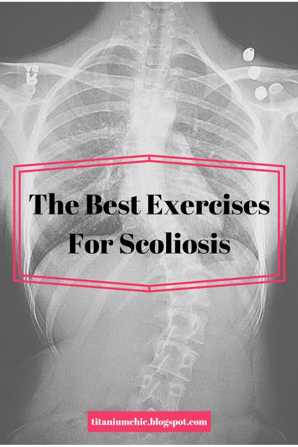 The Best Exercises For Scoliosis