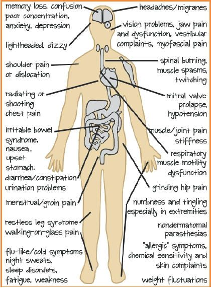 This list of symptoms has been correlated by the Arthritis Foundation S.A.  1. PAIN- in the muscle: often described as aching, burning, throbbing, gnawing, shooting, tingling. Almost always e...