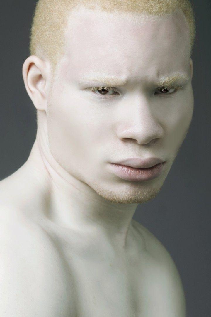 African Albino portrait