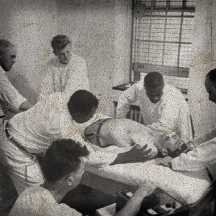 ECT was performed with no anesthesia. Just a rod between the teeth to bite on. Asylum