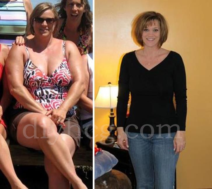 View the full story to this HCG diet before and after story and see TON of more pictures from people who did the HCG diet… amazing results! http://www.diyhcg.com