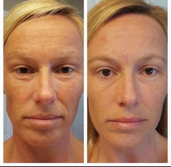 90 Day Results using Nerium's Night Cream www.AmberRyder.Nerium.com