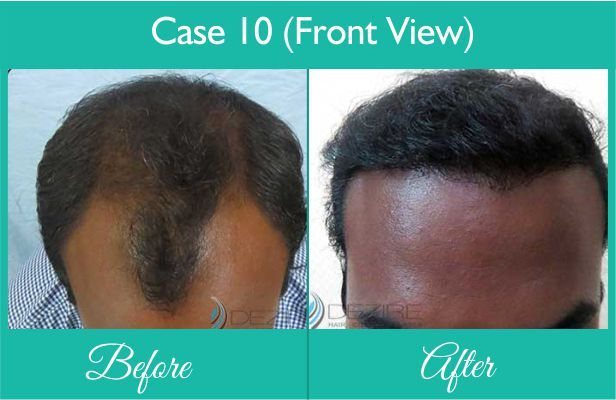 Fue Hair Transplant For Men done at Dezire Clinic Pune. Visit our website to know details of Fue Hair Transplant For Men Cosmetic Surgery in India, Cost of Fue Hair Transplant For Men. Call on 9222122122 for free consultation.