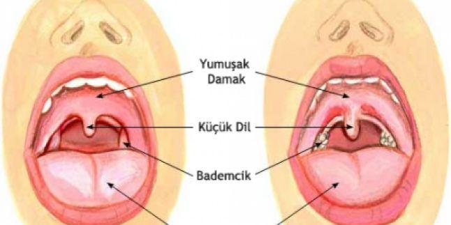 Burun ve ağız boşluğunun arkasında gelişen  iltihaplı bir hastalık olan farenjit, akut ve kronik olmak üzere iki şekilde görülür. Ani gelişen, şiddetli iltihaplanmalar akut, daha hafif seyreden fakat buna karşılık daha uzun süren türü ise kronik farenjittir. Akut farenjitte boğaz ağrısı, boğazda yanma, kuruluk gibi şikayetlerin yanı sıra ses kısılması, ateş, halsizlik, burun akması gibi belirtiler de görülebilir ve çoğunlukla virüslerden kaynaklanır. Kronik farenjitte ise ateş ya da…