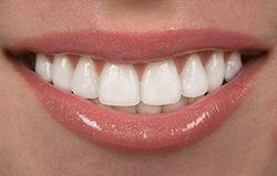 Dental Crowns in Kennewick, WA - http://www.kennewicksmiles.com/services/dental-crowns/