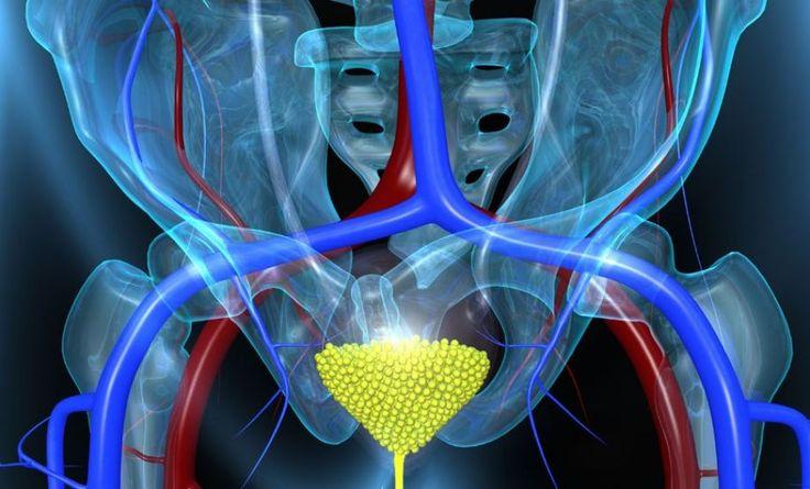 Θεραπεία μεταστατικού καρκίνου ουροδόχου κύστεως
