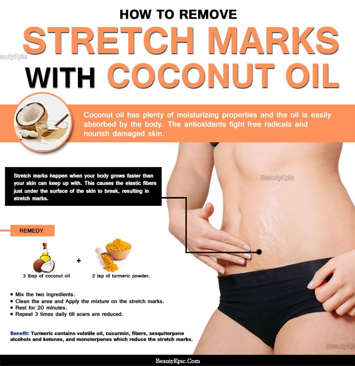 3f192cebbedf2a16323a32068af141c9 - How To Get Rid Of Stretch Marks On Thighs Teenager