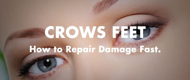 Crows Feet Treatment: How to Repair Damage Fast