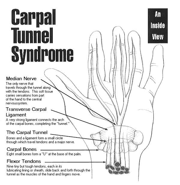 anatomical and physiological description of the carpal tunnel syndrome Carpal tunnel syndrome (cts) is defined by compression of the median nerve in the wrist it is the commonest of the compressive syndromes and its most frequent cause is idiopathic even though spontaneous regression is possible, the general rule is that the symptoms will worsen.