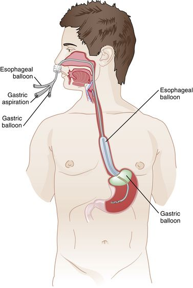 Balloon Tamponade for esophageal varices