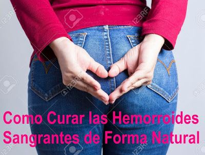 ClickAquí➡ http://HemorroidesControl.blogspot.com/2016/03/como-curar-hemorroides-sangrantes-de-forma-natural-tratamiento.html Como Curar las Hemorroides Sangrantes de Forma Natural: Opciones de Tratamiento con método Hemorroides Control - Cómo #Curar las #Hemorroides y #Almorranas de manera #Natural.  #SaludMujer #SaludHombre #VidaSana #VidaSaludable
