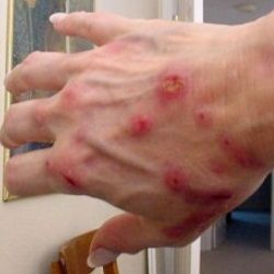 Natural Remedies For Lyme Disease Treatment