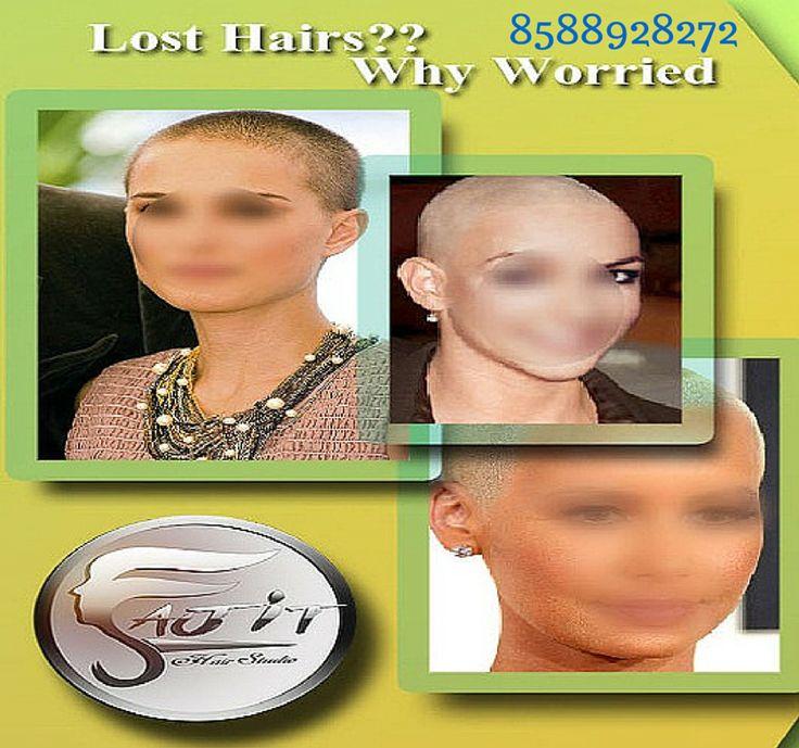 7 Best Hair Transplant Images On Pinterest Hair Transplant Barber