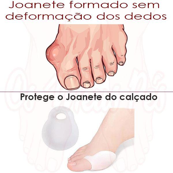 O Protector de Joanetes em Gel , protege o joanete das agressões causadas pelo calçado, evitando assim a a formação de calosidades.