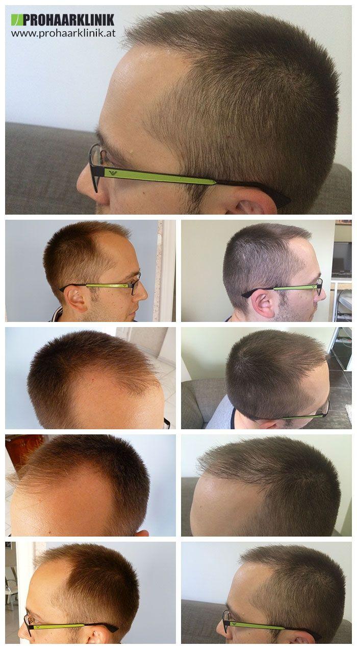 http://www.prohaarklinik.at/haartransplantation-vorher-nachher-bilder/ Haarimplantat Ergebnisse - PROHAARKLINIK  AARON wurde kahl in den Schläfen oder Zonen 1 und 2. Er brauchte mehr als 4000 Haare für dieses gute Ergebnis. Hergestellt von PROHAARKLINIK.
