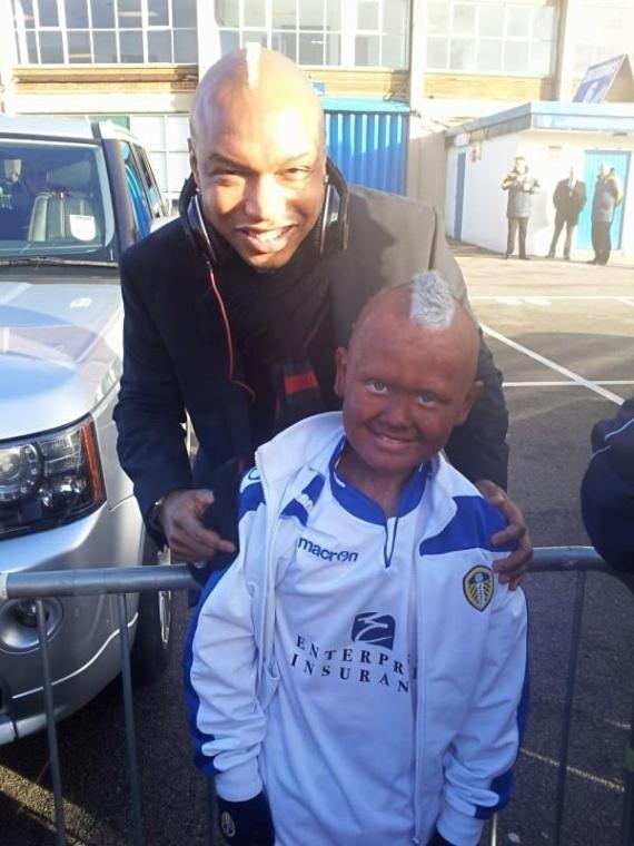 El-Hadji Diouf Poses With Blacked-Up Leeds Fan ,weird as shit