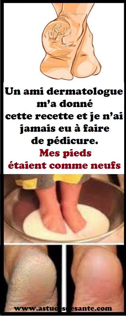 Un ami dermatologue m'a donné cette recette et je n'ai jamais eu à faire de pédicure. Mes pieds étaient comme neufs #recettebeauté #dermatologue #pédicure #bain #remede