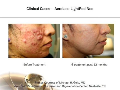 Moderate to Cystic Acne:  Treatment Advancements with 650-microsecond Laser Technology -  CLICK HERE for the Acne No More program #acne #acnetreatment #acnetips #acnecare Learn how Michael Gold, MD has advanced his treatment of acne at the Gold Skin Care Center with the 650-microsecond technology of Aerolase. See how you can offer your patients effective and comfortable results... - #Acne