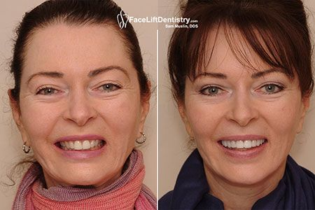 Non-invasive Porcelain Veneers treatment remove the spaces between your teeth and make them more beautiful. If you want the same then visit to the above mentioned link.  #NoninvasivePorcelainVeneers