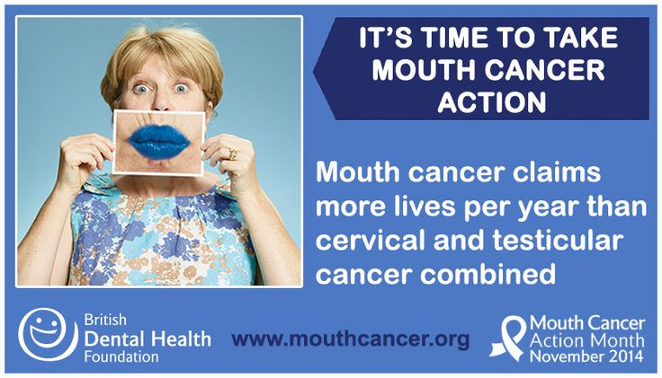 LIKE and SHARE: Did you know? Mouth cancer claims more lives per year than cervical and testicular cancer combined. It's time to take mouth cancer action - http://www.mouthcancer.org/what-is-mouth-cancer/ #MCAM14 #Bemouthaware #Bluelipselfie #MouthCancer