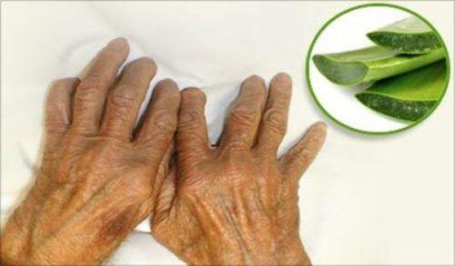 Ces huiles naturelles vous permettent de combattre et de guérir l'arthrite rapidement et efficacement !
