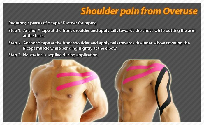 Most shoulder problems involve the soft tissues, muscles, ligaments, and tendons, rather than bones. #Ares #Tape #Kinesiology #Taping